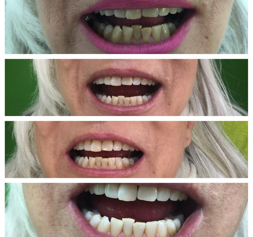 Schöne Zähne, egal mit  welchem Alter