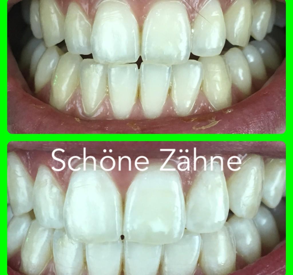 Schöne Zähne!